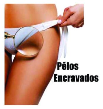 cabecalho_pelos_encravados